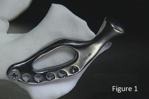 australia-3d-medical-limited-receives-order-25-3d-printed-jaws-successful-surgery-00002[1]