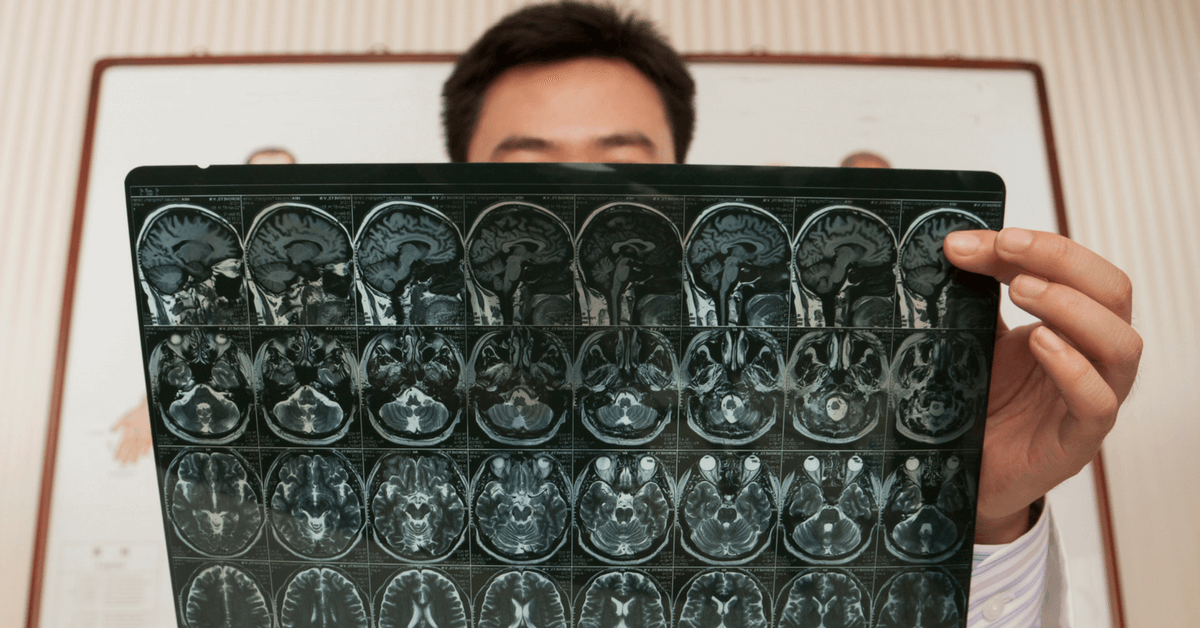 Dementia risk for brain injury survivors is real and substantial, per study in The Lancet